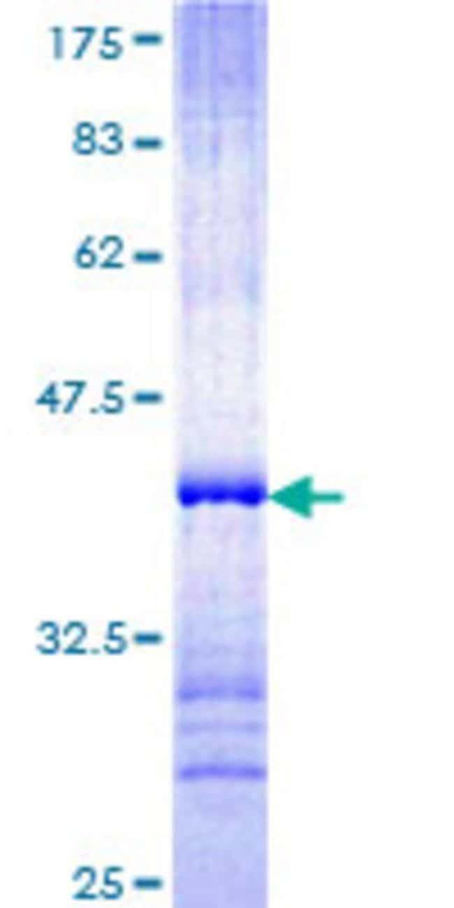 AbnovaHuman PCDHB14 Partial ORF (NP_061757, 181 a.a. - 279 a.a.) Recombinant