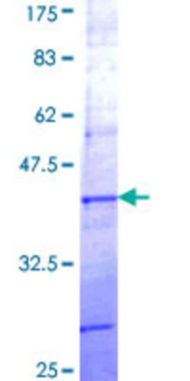AbnovaHuman PCDHB7 Partial ORF (NP_061763, 90 a.a. - 189 a.a.) Recombinant