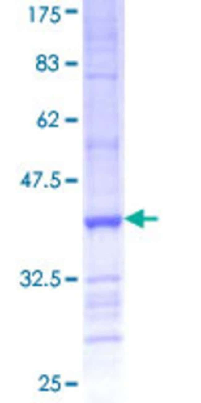 AbnovaHuman PCDHB6 Partial ORF (NP_061762, 118 a.a. - 217 a.a.) Recombinant