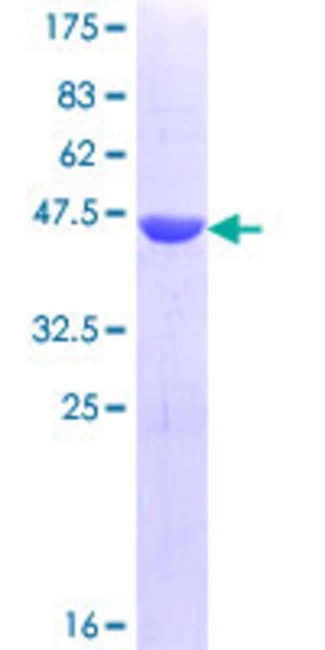 AbnovaHuman TEX14 Partial ORF (NP_938207.2, 1392 a.a. - 1491 a.a.) Recombinant
