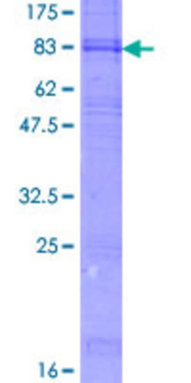 AbnovaHuman ANKH Full-length ORF (AAH14526.1, 1 a.a. - 492 a.a.) Recombinant