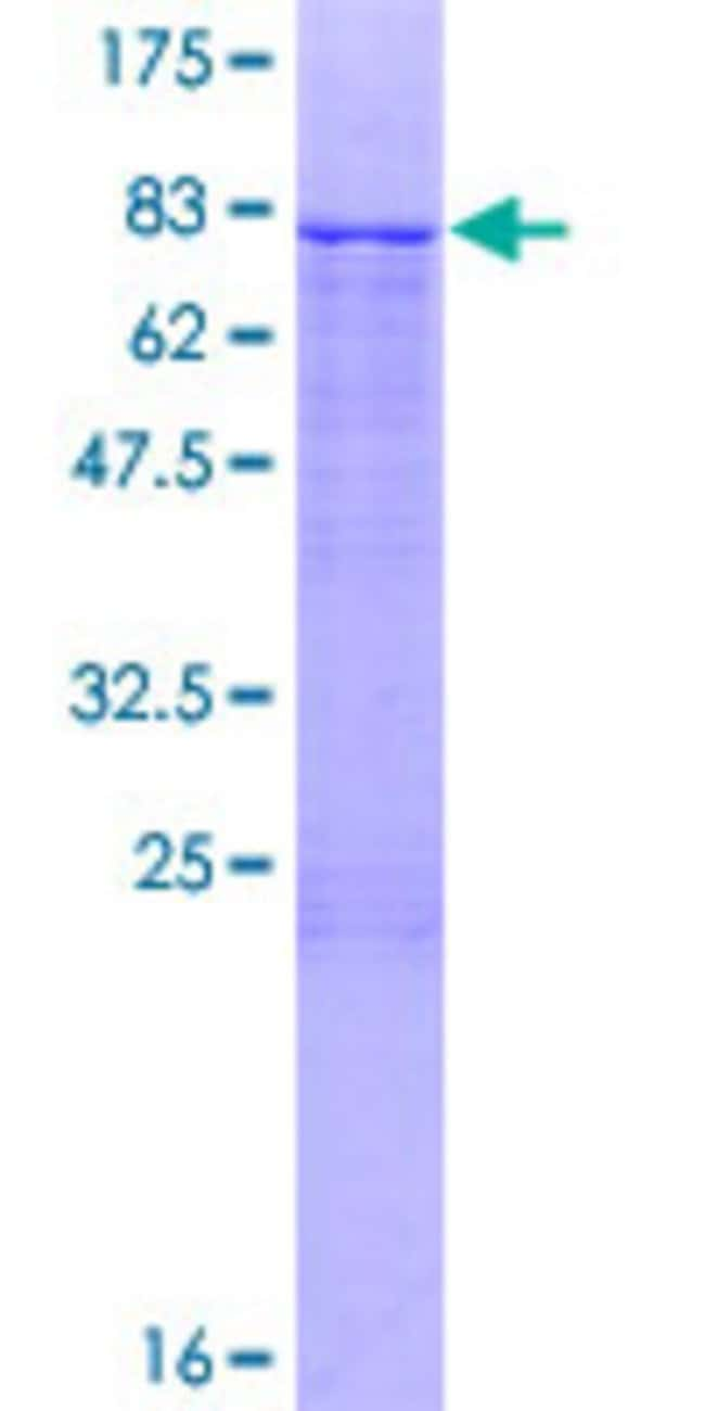Abnova™ Human ZNF253 Full-length ORF (NP_066385.2, 1 a.a. - 499 a.a.) Recombinant Protein with GST-tag at N-terminal 25μg Abnova™ Human ZNF253 Full-length ORF (NP_066385.2, 1 a.a. - 499 a.a.) Recombinant Protein with GST-tag at N-terminal