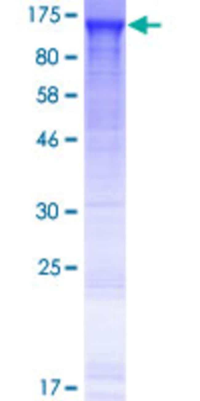 Abnova Human KIAA1217 Full-length ORF (AAH18764.1, 1 a.a. - 877 a.a.) Recombinant