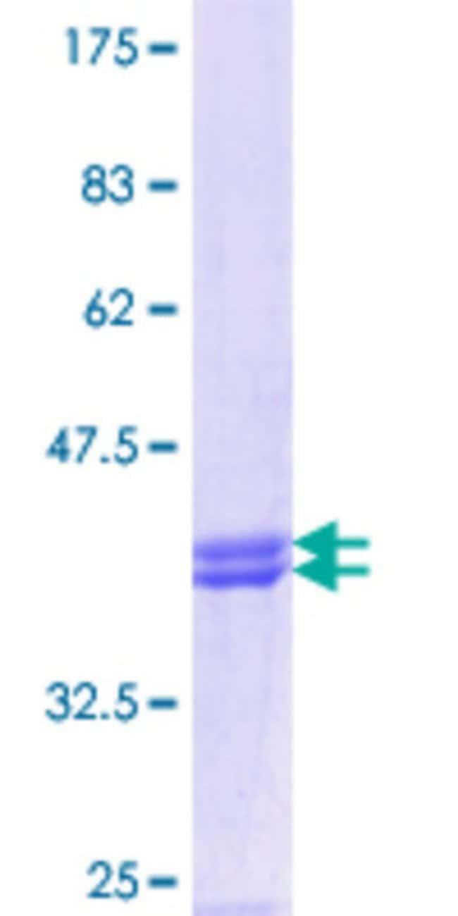 AbnovaHuman MRAP Partial ORF (NP_848932.1, 69 a.a. - 172 a.a.) Recombinant