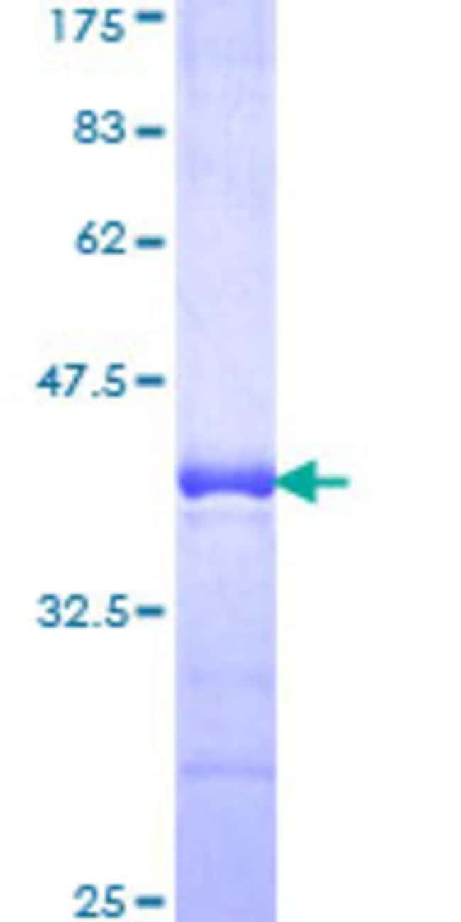 AbnovaHuman RNF20 Partial ORF (NP_062538, 177 a.a. - 276 a.a.) Recombinant