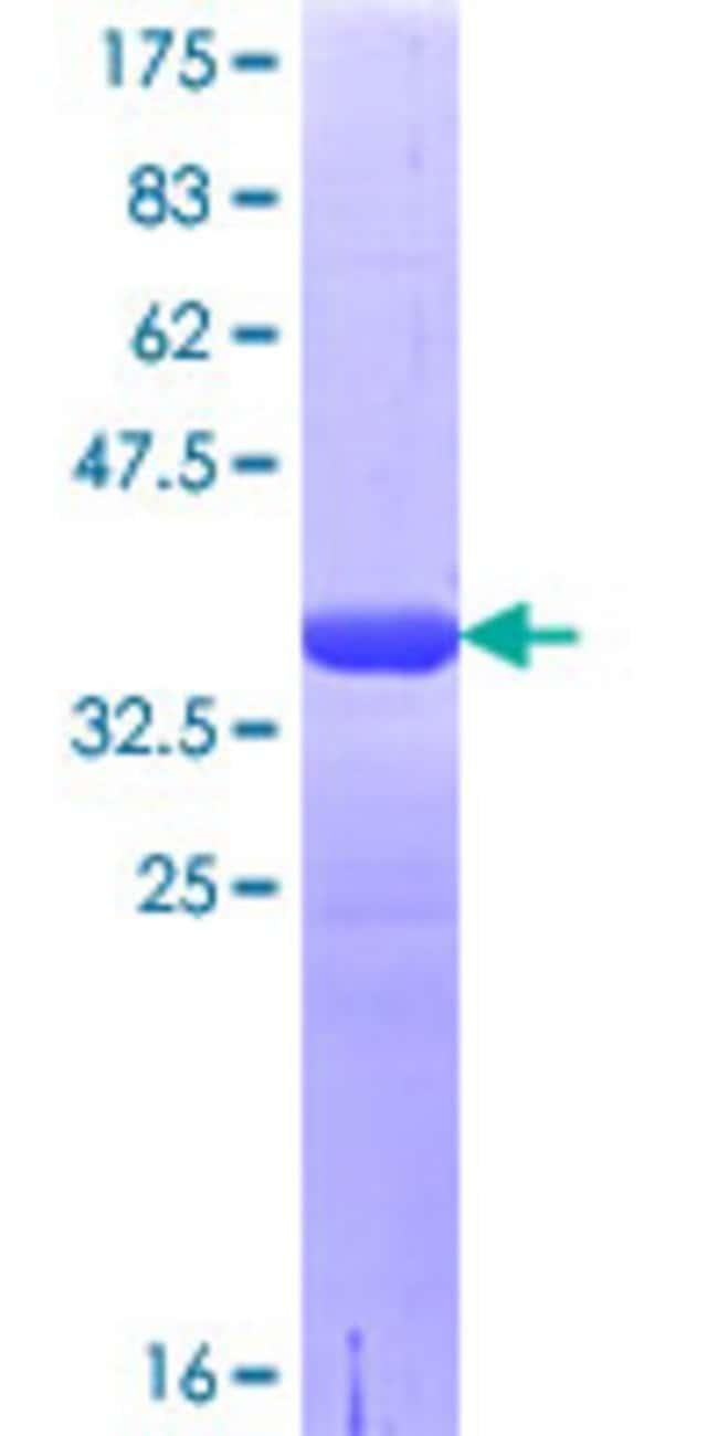 AbnovaHuman LRRC8A Partial ORF (NP_062540.2, 711 a.a. - 810 a.a.) Recombinant
