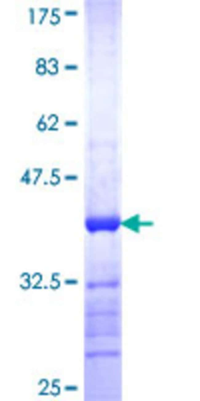 AbnovaHuman CPXM1 Partial ORF (NP_062555, 610 a.a. - 718 a.a.) Recombinant