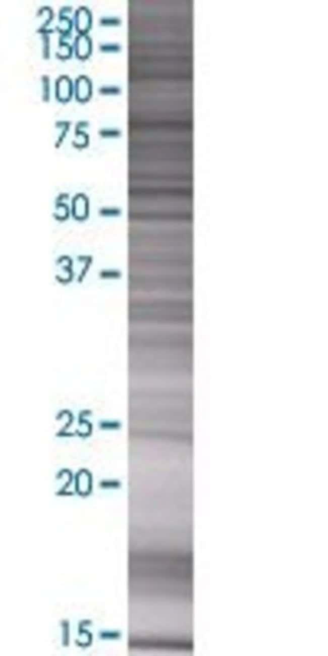 AbnovaANKRD7 293T Cell Transient Overexpression Lysate (Denatured) 100μL:Protein