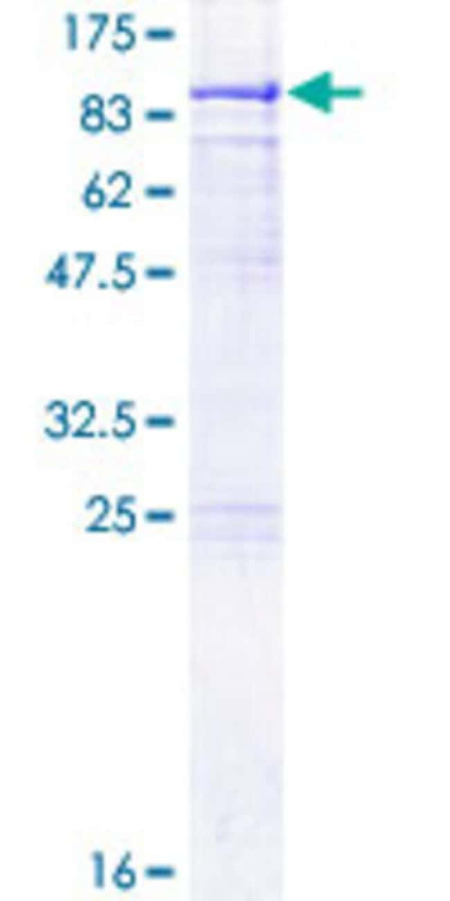 Abnova™ Human METTL3 Full-length ORF (NP_062826.2, 1 a.a. - 580 a.a.) Recombinant Protein with GST-tag at N-terminal 10μg Abnova™ Human METTL3 Full-length ORF (NP_062826.2, 1 a.a. - 580 a.a.) Recombinant Protein with GST-tag at N-terminal
