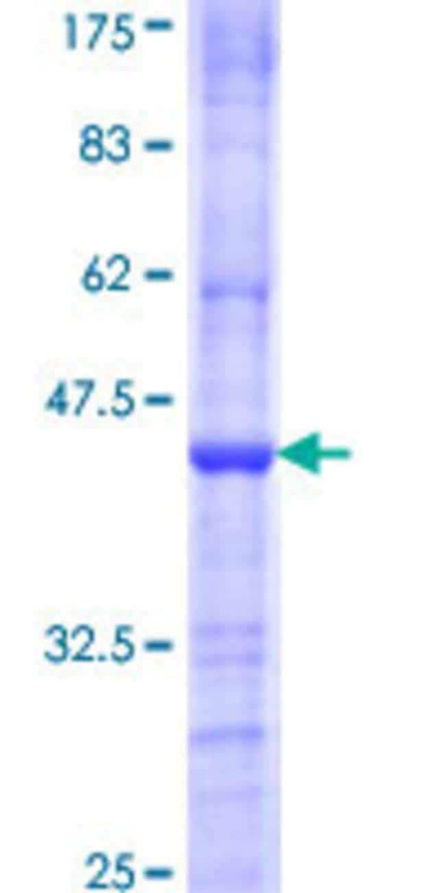 AbnovaHuman HRMT1L4 Partial ORF (NP_062828, 235 a.a. - 334 a.a.) Recombinant