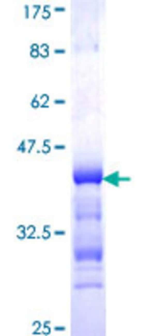 AbnovaHuman EIF4ENIF1 Partial ORF (NP_062817, 886 a.a. - 985 a.a.) Recombinant