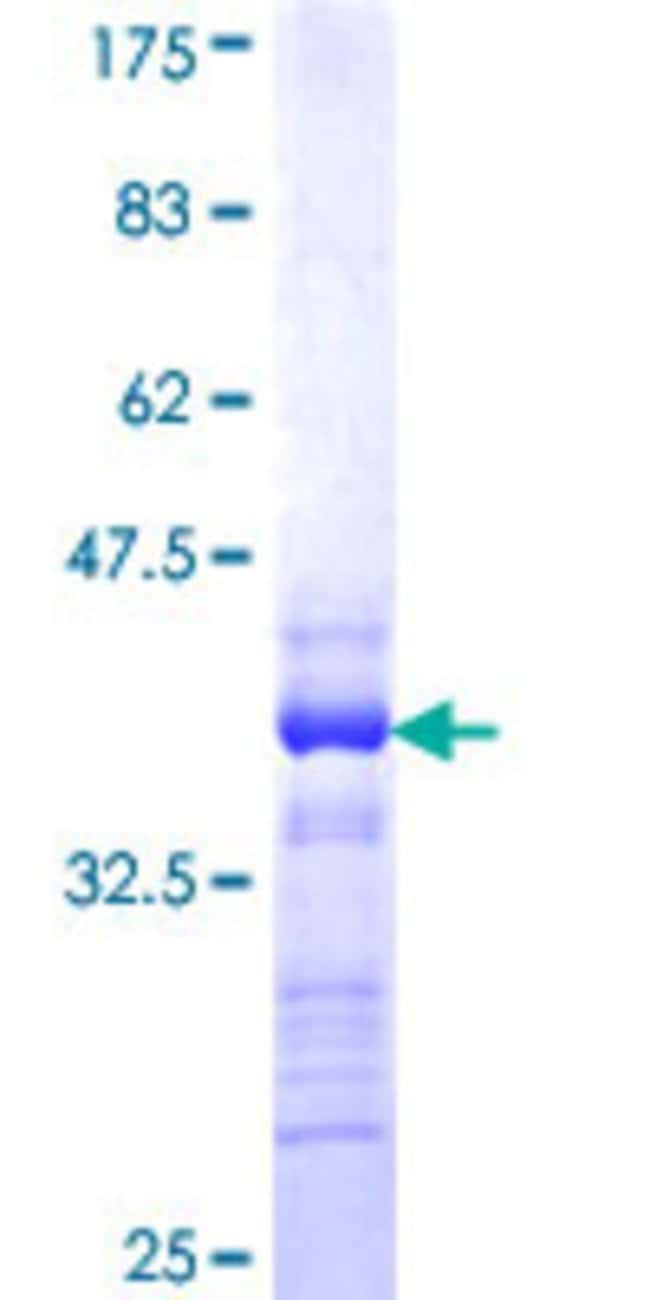 Abnova™Human KCNQ5 Partial ORF (NP_062816, 833 a.a. - 932 a.a.) Recombinant Protein with GST-tag at N-terminal 25μg Abnova™Human KCNQ5 Partial ORF (NP_062816, 833 a.a. - 932 a.a.) Recombinant Protein with GST-tag at N-terminal