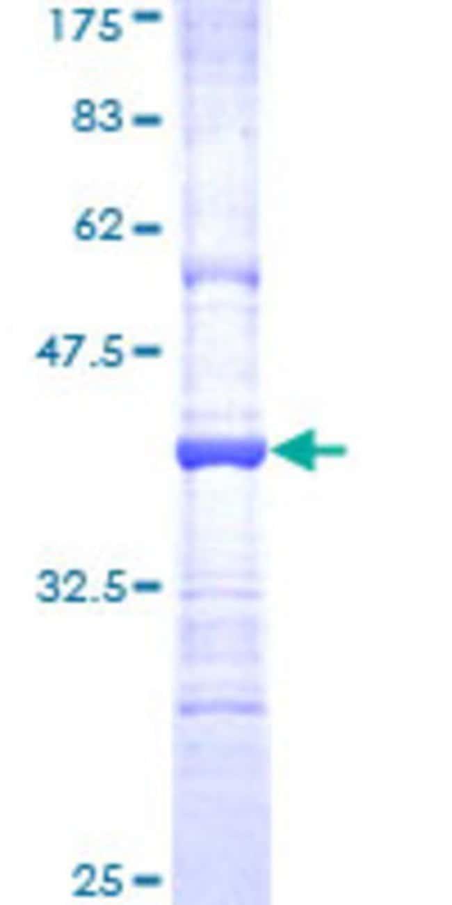 AbnovaHuman MMP26 Partial ORF (NP_068573, 152 a.a. - 261 a.a.) Recombinant