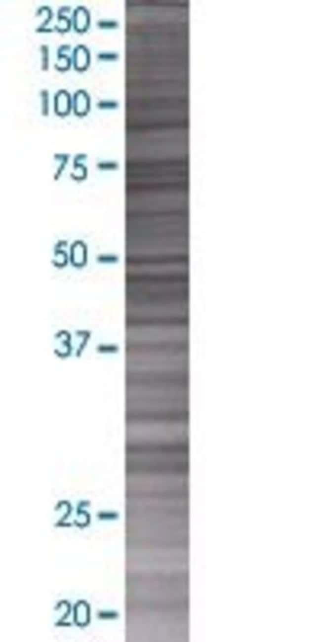Abnova INPP5E 293T Cell Transient Overexpression Lysate (Denatured) 100µL:Life