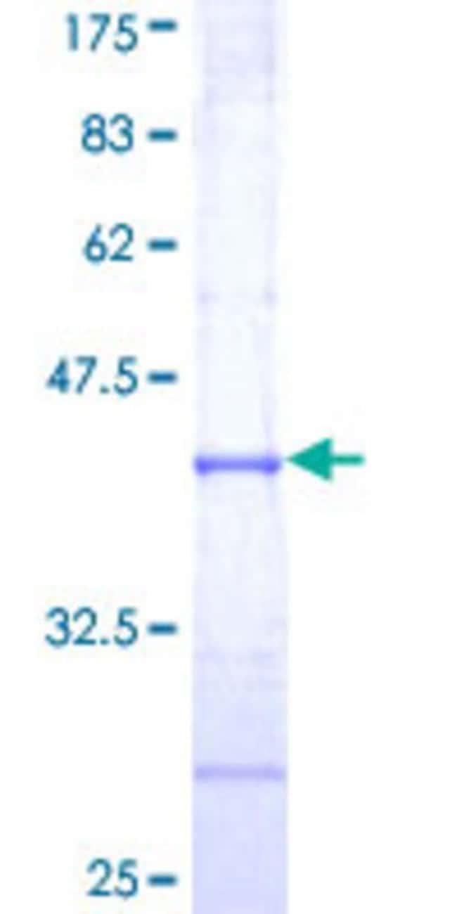 AbnovaHuman TRIM39 Partial ORF (NP_067076, 421 a.a. - 517 a.a.) Recombinant