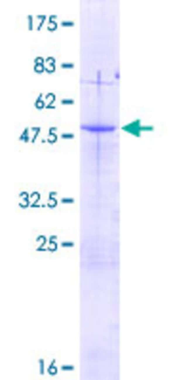 AbnovaHuman C11orf17 Full-length ORF (NP_065693.2, 1 a.a. - 210 a.a.) Recombinant