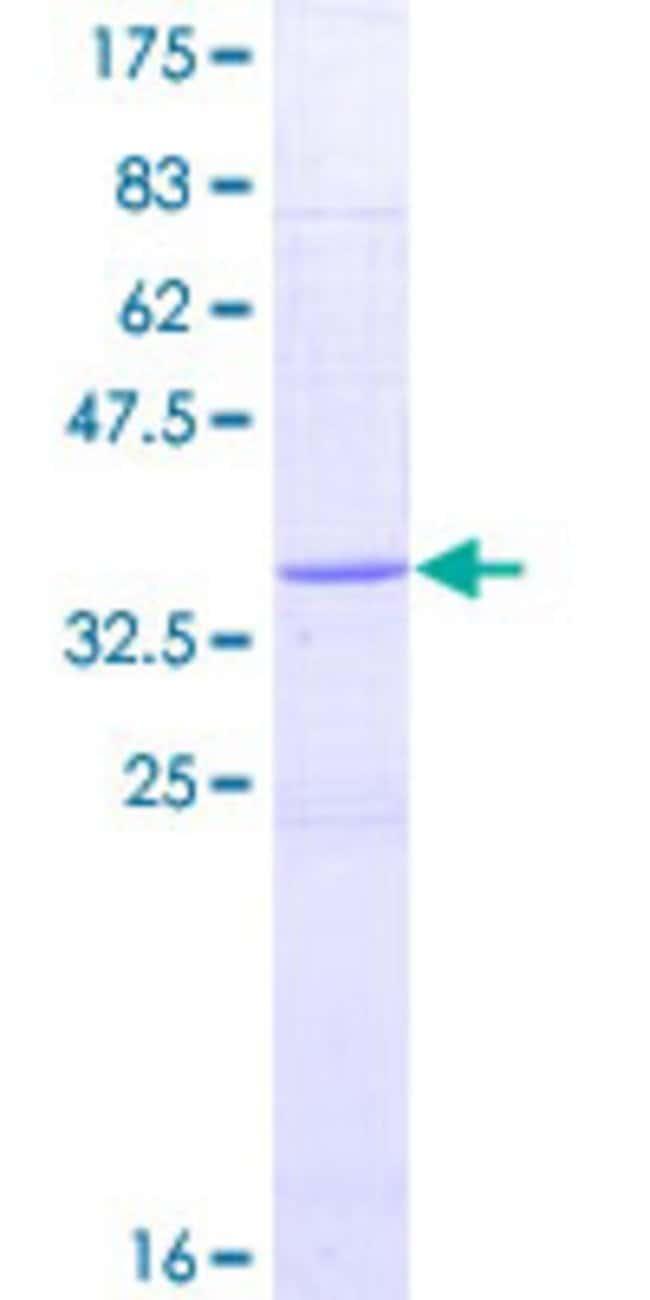 AbnovaHuman RETN Full-length ORF (AAI01555.1, 1 a.a. - 108 a.a.) Recombinant