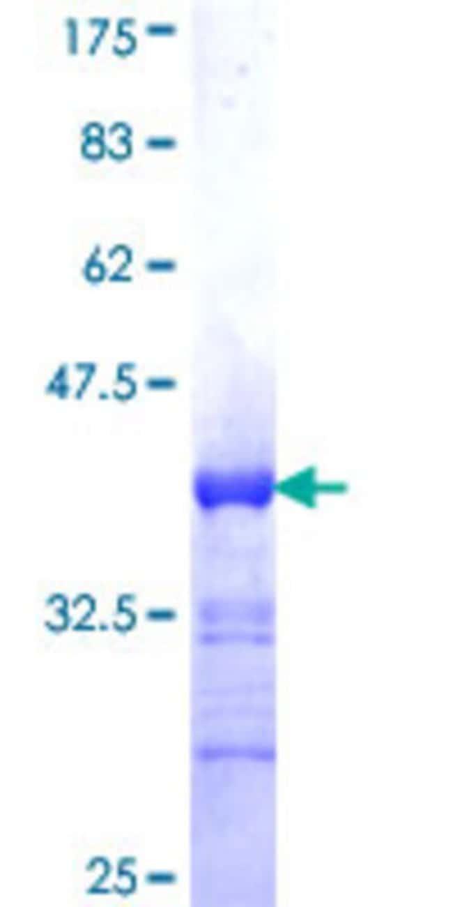 AbnovaHuman BARHL1 Partial ORF (NP_064448, 55 a.a. - 154 a.a.) Recombinant
