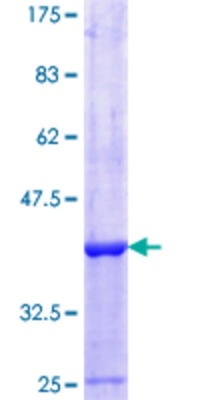 AbnovaHuman ZC3HAV1 Partial ORF (NP_078901.3, 601 a.a. - 699 a.a.) Recombinant