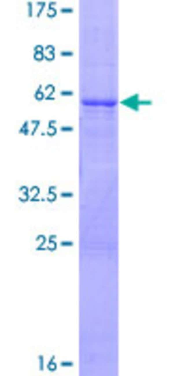 AbnovaHuman IFNK Full-length ORF (Q9P0W0, 1 a.a. - 207 a.a.) Recombinant