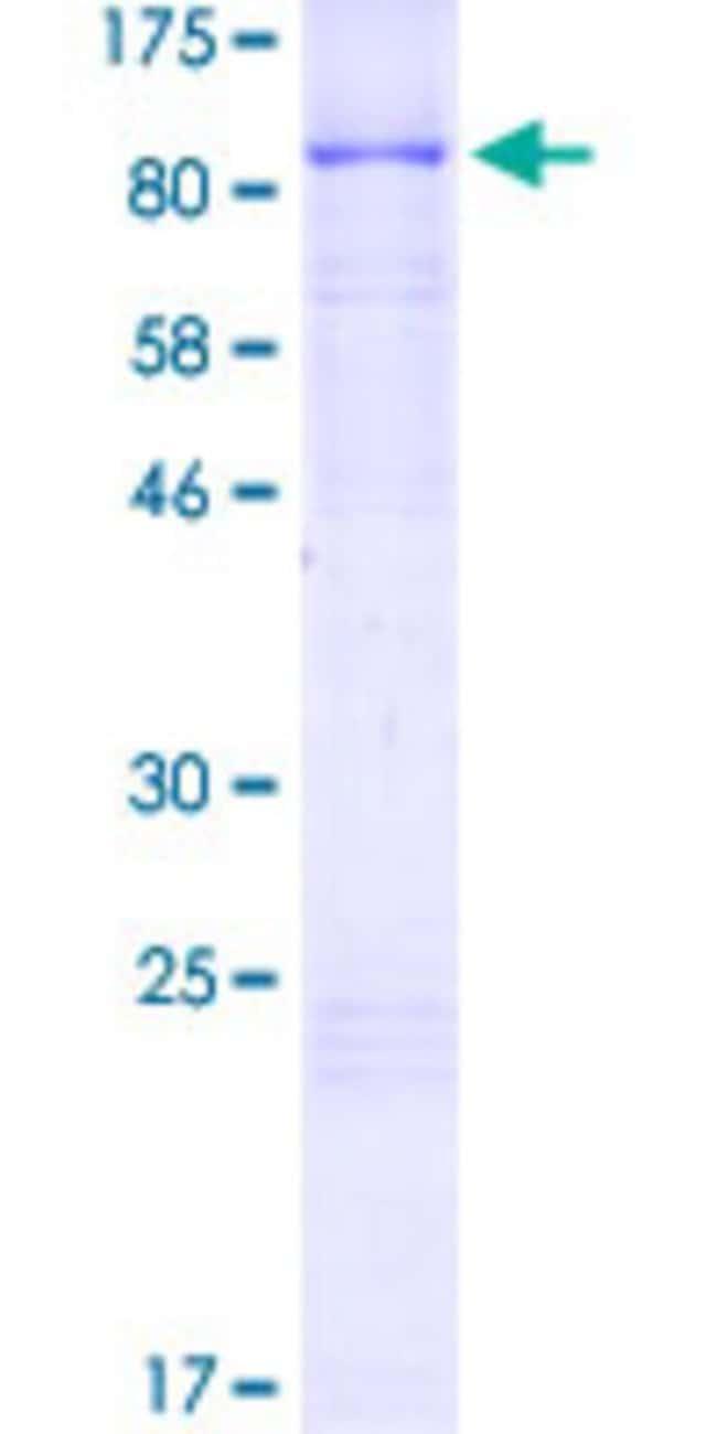 AbnovaHuman RAD18 Full-length ORF (NP_064550.2, 1 a.a. - 495 a.a.) Recombinant