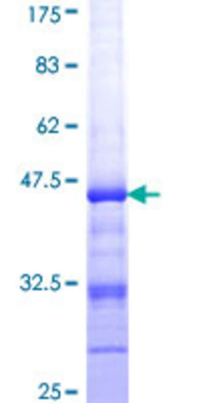 Abnova™Human RAD18 Partial ORF (NP_064550, 332 a.a. - 430 a.a.) Recombinant Protein with GST-tag at N-terminal 25μg Abnova™Human RAD18 Partial ORF (NP_064550, 332 a.a. - 430 a.a.) Recombinant Protein with GST-tag at N-terminal