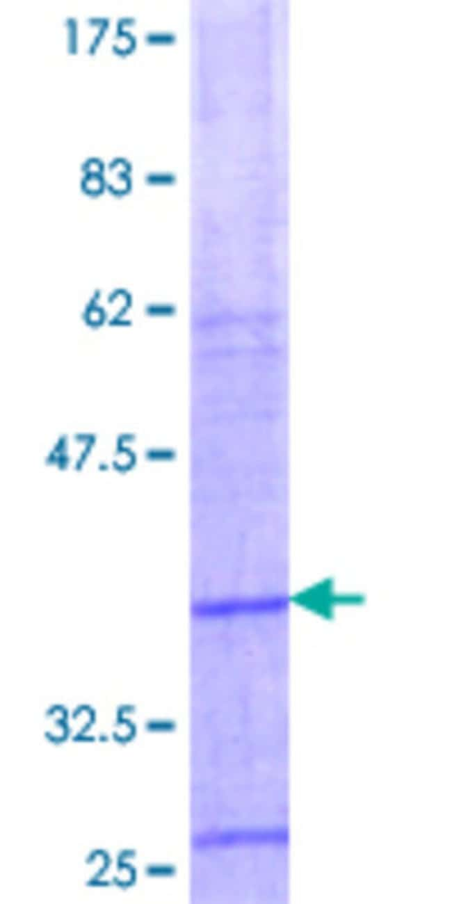 Abnova™ Human LGALS14 Partial ORF (NP_064514.1, 73 a.a. - 139 a.a.) Recombinant Protein with GST-tag at N-terminal 25μg Abnova™ Human LGALS14 Partial ORF (NP_064514.1, 73 a.a. - 139 a.a.) Recombinant Protein with GST-tag at N-terminal