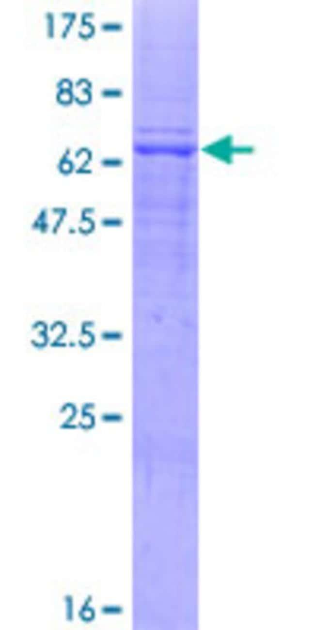 AbnovaHuman AGPAT4 Full-length ORF (NP_064518.1, 1 a.a. - 378 a.a.) Recombinant
