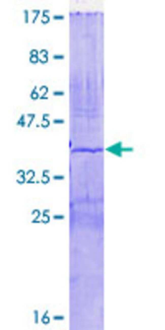 AbnovaHuman AGPAT4 Partial ORF (NP_064518, 152 a.a. - 251 a.a.) Recombinant