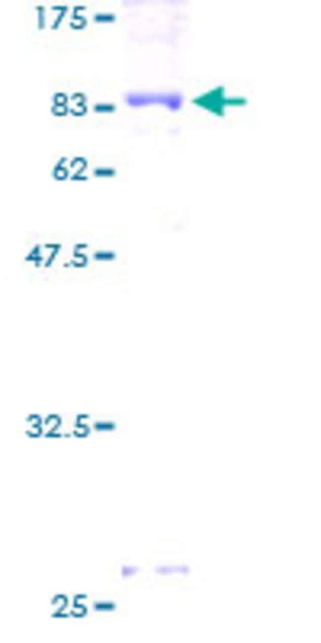AbnovaHuman DPYSL5 Full-length ORF (AAH02874, 1 a.a. - 564 a.a.) Recombinant