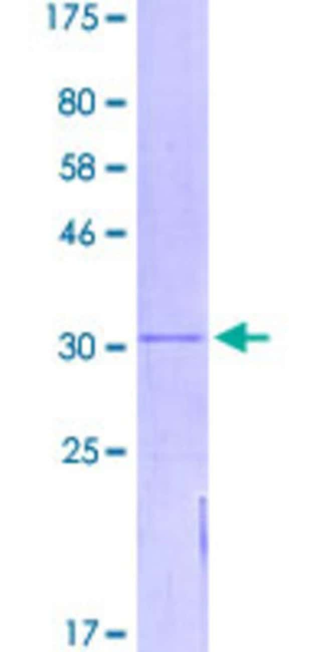 Abnova™Human TMEM167B Full-length ORF (NP_064526.1, 1 a.a. - 74 a.a.) Recombinant Protein with GST-tag at N-terminal 25μg Abnova™Human TMEM167B Full-length ORF (NP_064526.1, 1 a.a. - 74 a.a.) Recombinant Protein with GST-tag at N-terminal