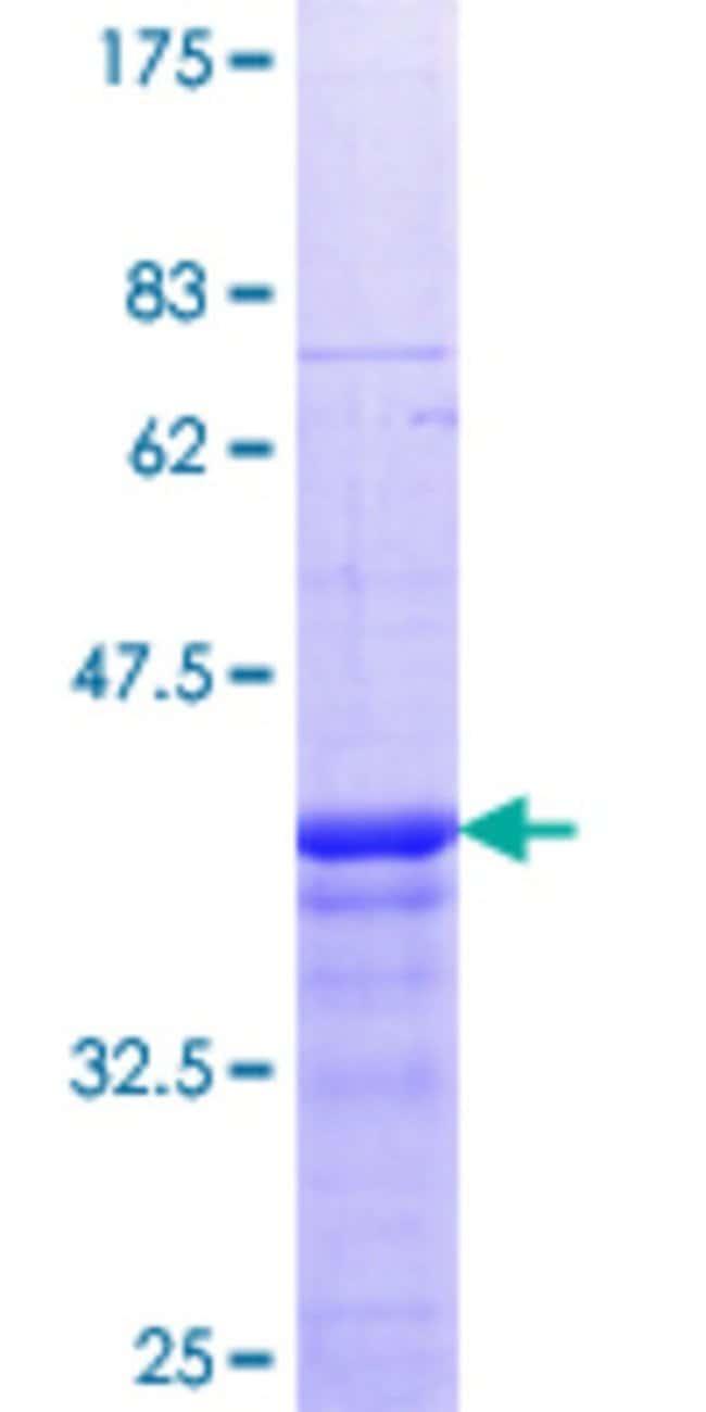 AbnovaHuman EXOSC5 Partial ORF (NP_064543.3, 1 a.a. - 100 a.a.) Recombinant