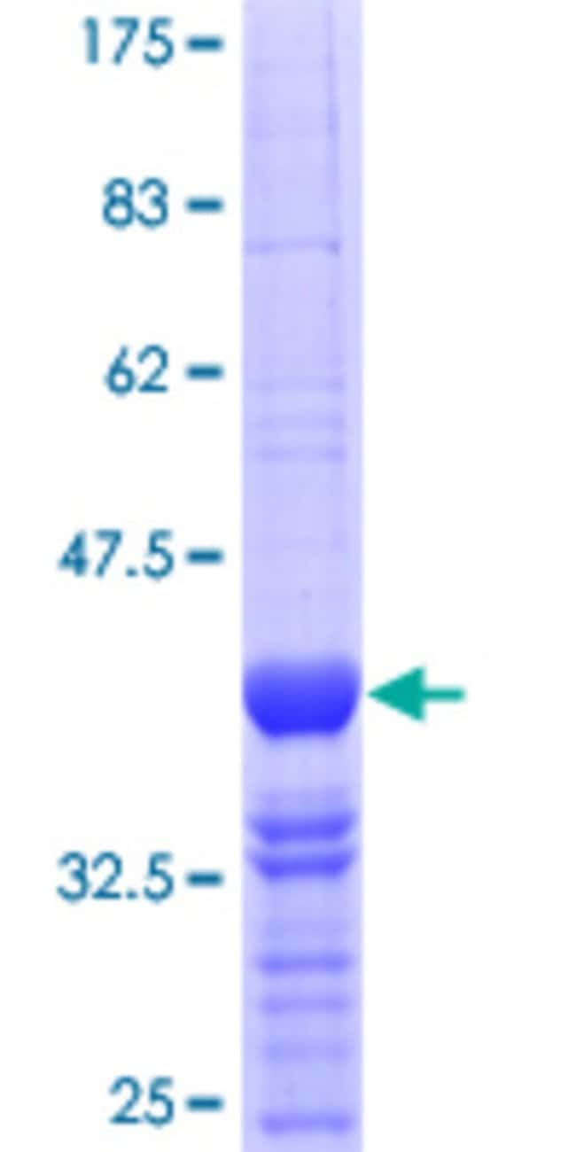 Abnova™Human MEIS3 Partial ORF (NP_001009813.1, 1 a.a. - 110 a.a.) Recombinant Protein with GST-tag at N-terminal 25μg Abnova™Human MEIS3 Partial ORF (NP_001009813.1, 1 a.a. - 110 a.a.) Recombinant Protein with GST-tag at N-terminal