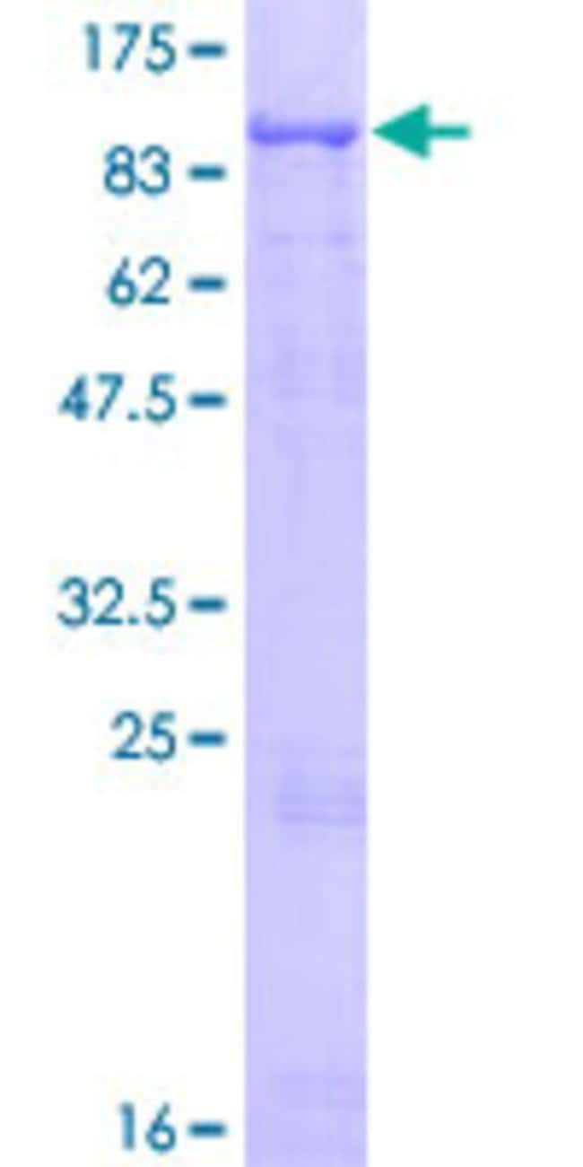 Abnova Human MCCC1 Full-length ORF (AAH04214.1, 1 a.a. - 725 a.a.) Recombinant