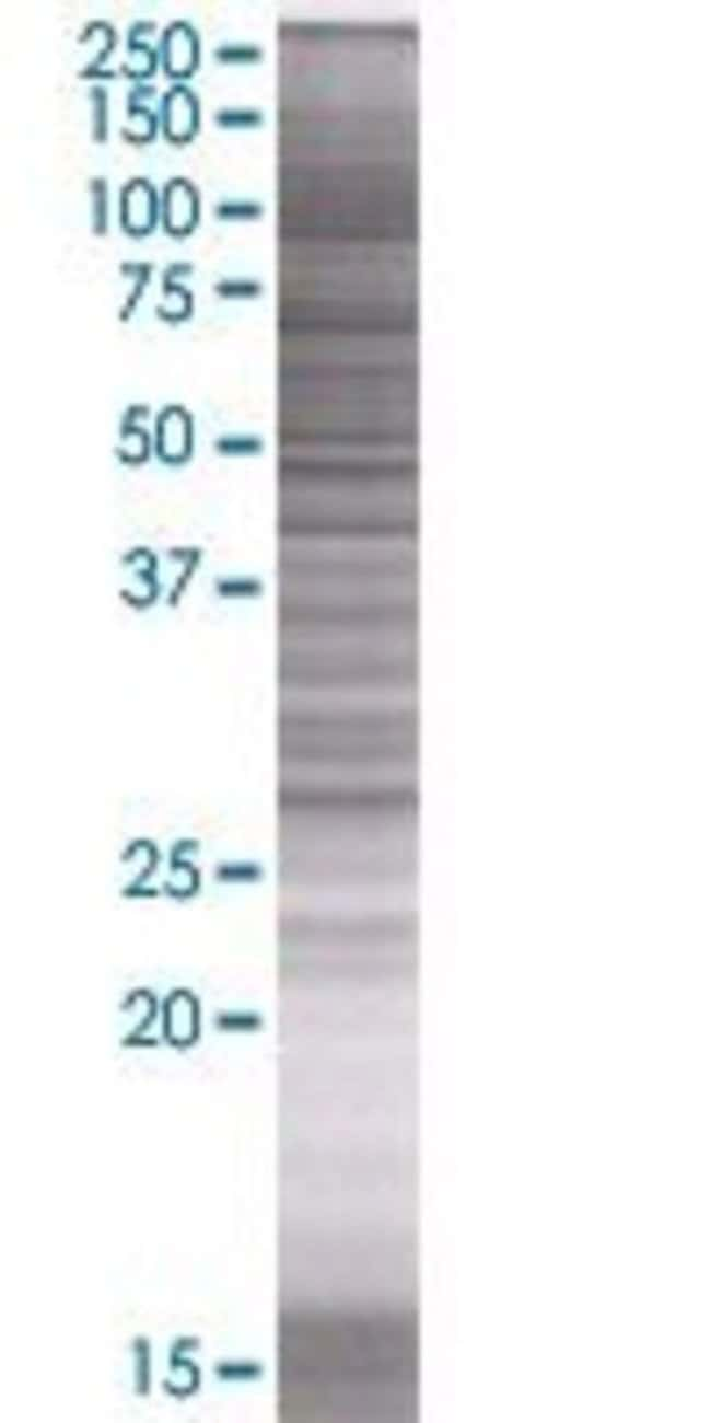 Abnova LXN 293T Cell Transient Overexpression Lysate (Denatured) 100µL:Life
