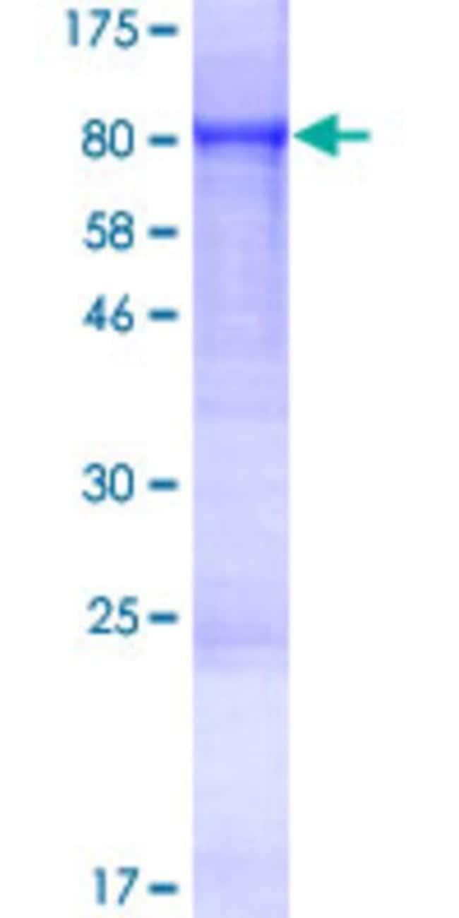 AbnovaHuman FEM1C Full-length ORF (NP_064562.1, 1 a.a. - 617 a.a.) Recombinant