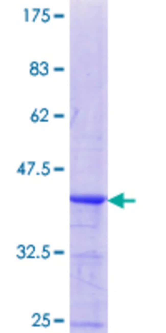 AbnovaHuman CA10 Partial ORF (NP_064563.1, 229 a.a. - 328 a.a.) Recombinant