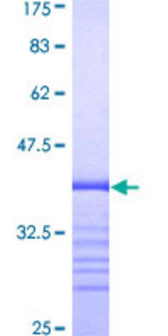 AbnovaHuman TMEPAI Partial ORF (AAH15918, 181 a.a. - 280 a.a.) Recombinant