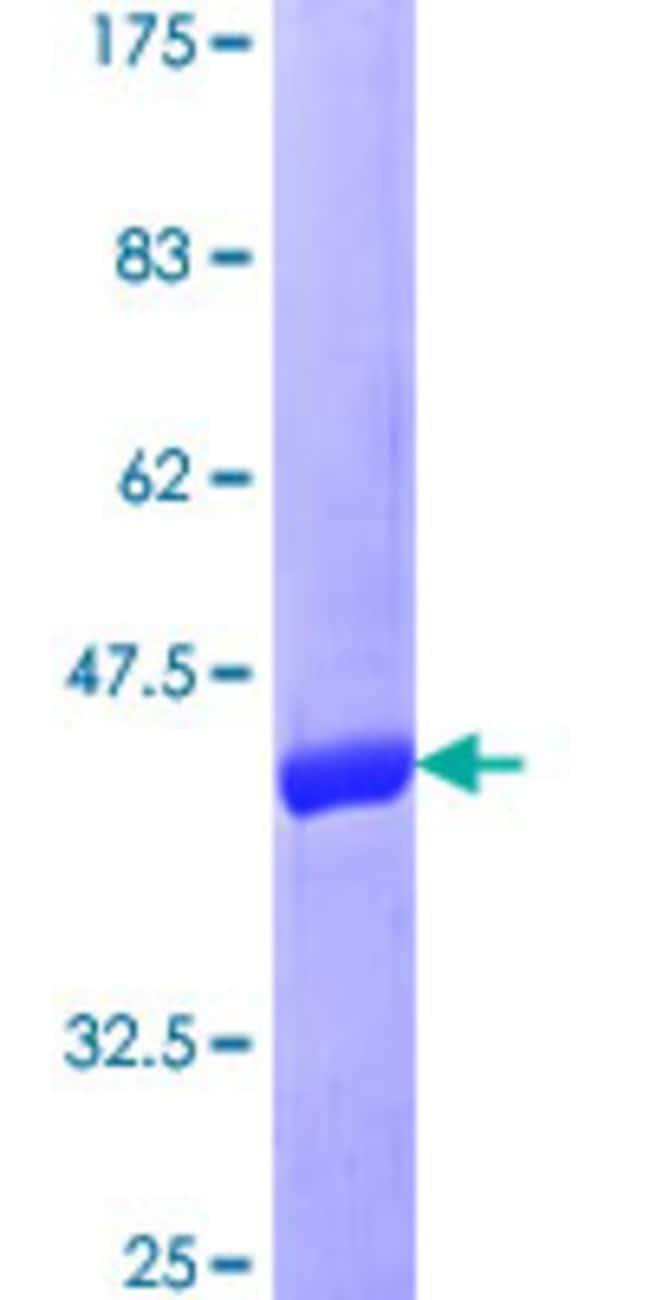 AbnovaHuman DUSP22 Full-length ORF (NP_064570.1, 1 a.a. - 184 a.a.) Recombinant