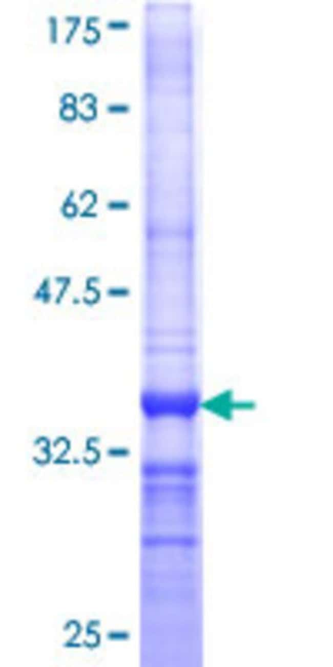 Abnova™Human DUSP22 Partial ORF (NP_064570, 112 a.a. - 184 a.a.) Recombinant Protein with GST-tag at N-terminal 10μg Abnova™Human DUSP22 Partial ORF (NP_064570, 112 a.a. - 184 a.a.) Recombinant Protein with GST-tag at N-terminal