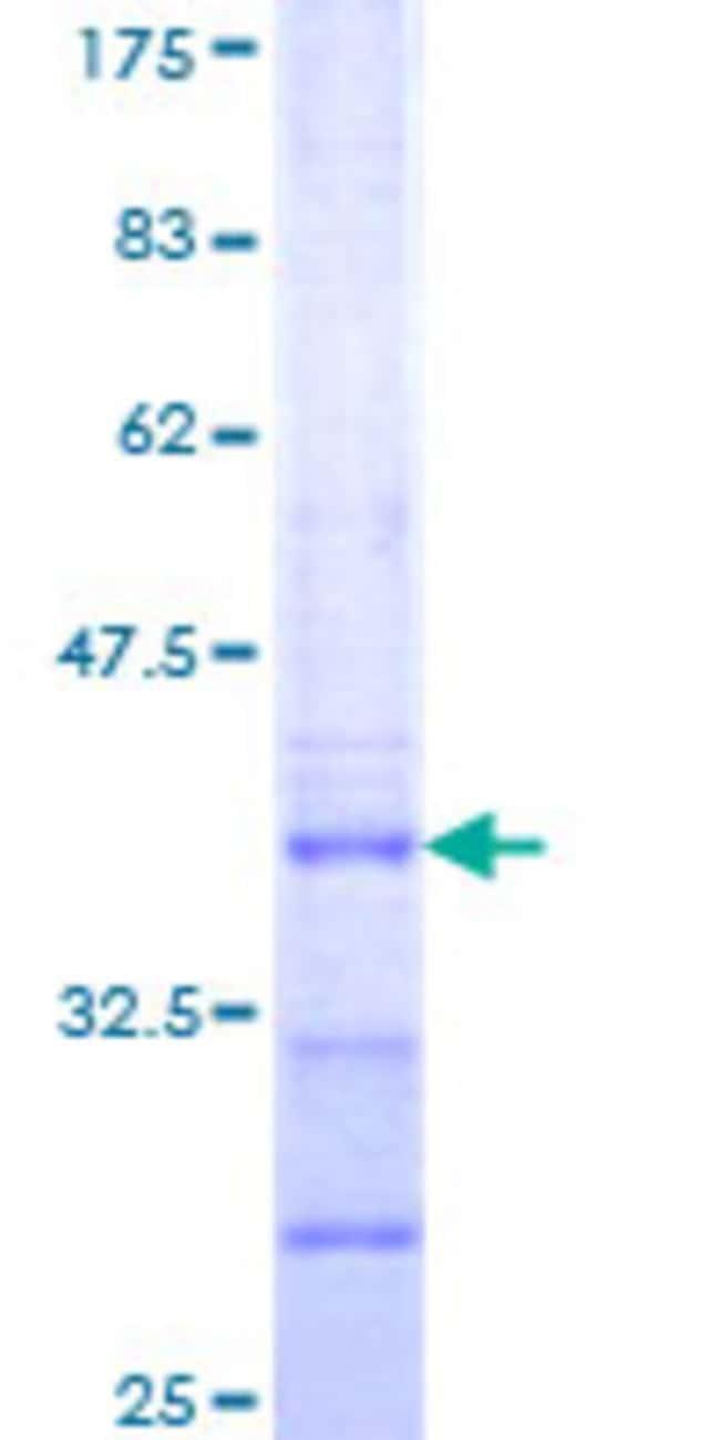 Abnova Human LHX9 Partial ORF (NP_001014434, 1 a.a. - 85 a.a.) Recombinant