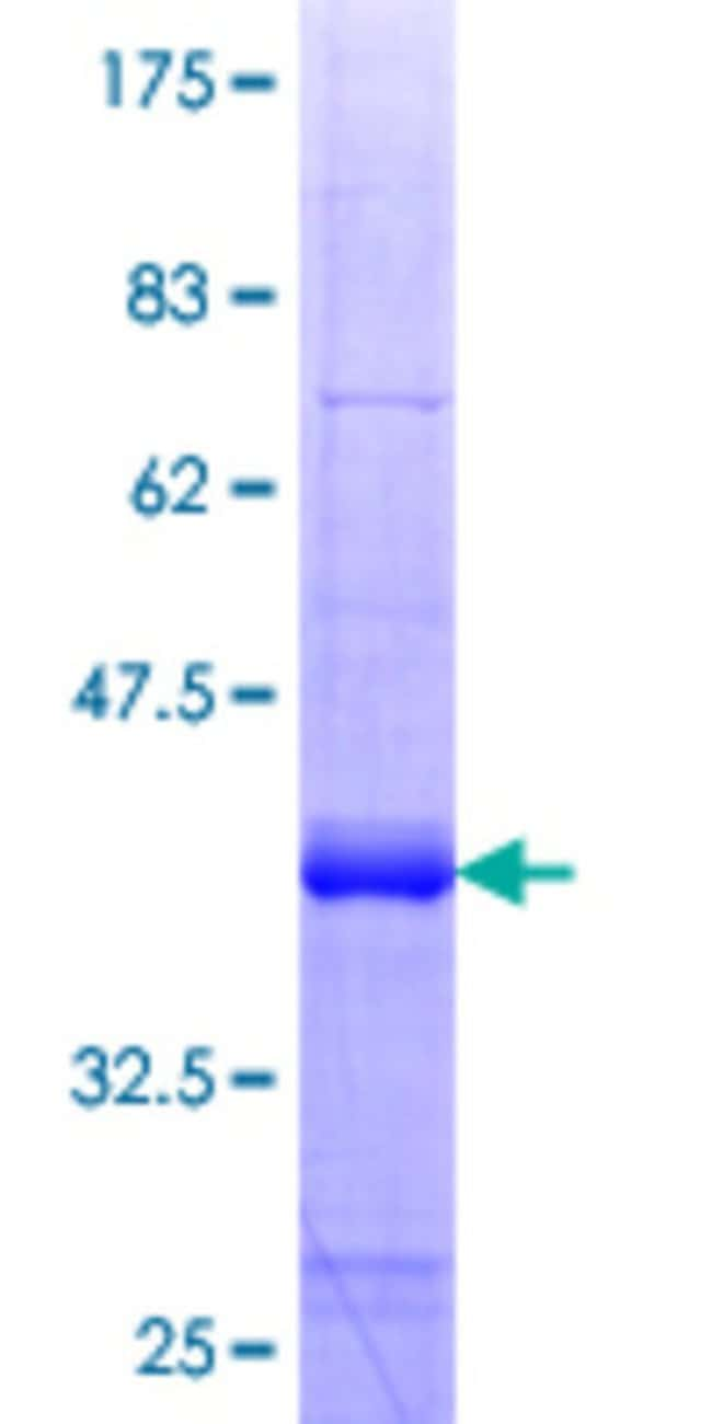 Abnova Human LHX9 Partial ORF (NP_001014434.1, 291 a.a. - 388 a.a.) Recombinant