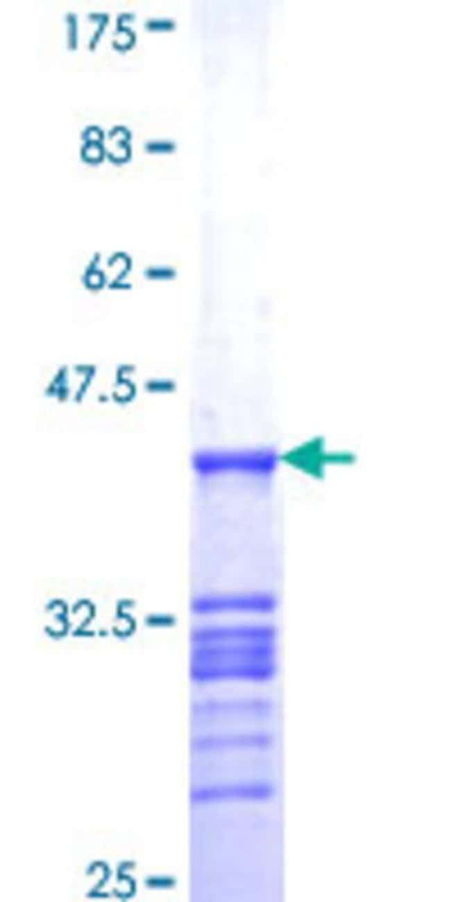 Abnova™Human ZA20D1 Partial ORF (NP_064590, 759 a.a. - 858 a.a.) Recombinant Protein with GST-tag at N-terminal 10μg Abnova™Human ZA20D1 Partial ORF (NP_064590, 759 a.a. - 858 a.a.) Recombinant Protein with GST-tag at N-terminal