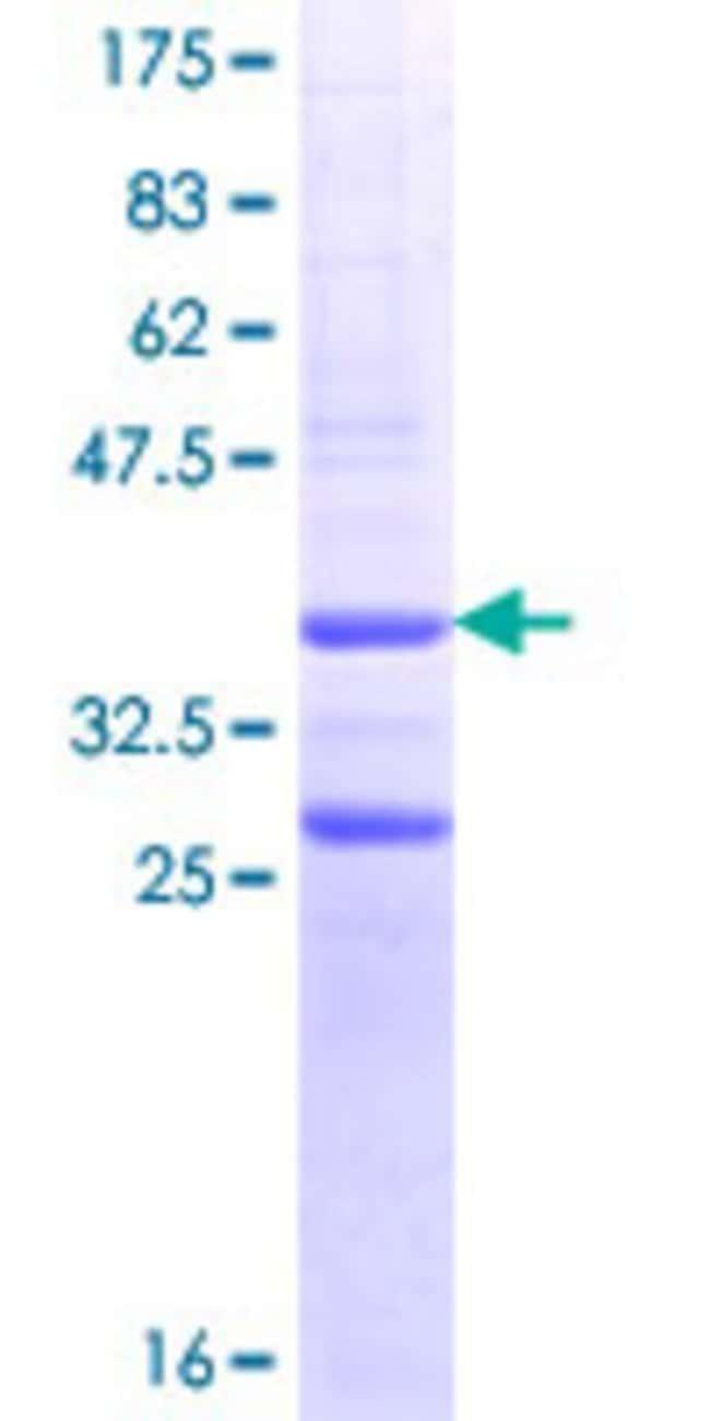 AbnovaHuman RGMA Partial ORF (NP_064596.1, 326 a.a. - 423 a.a.) Recombinant