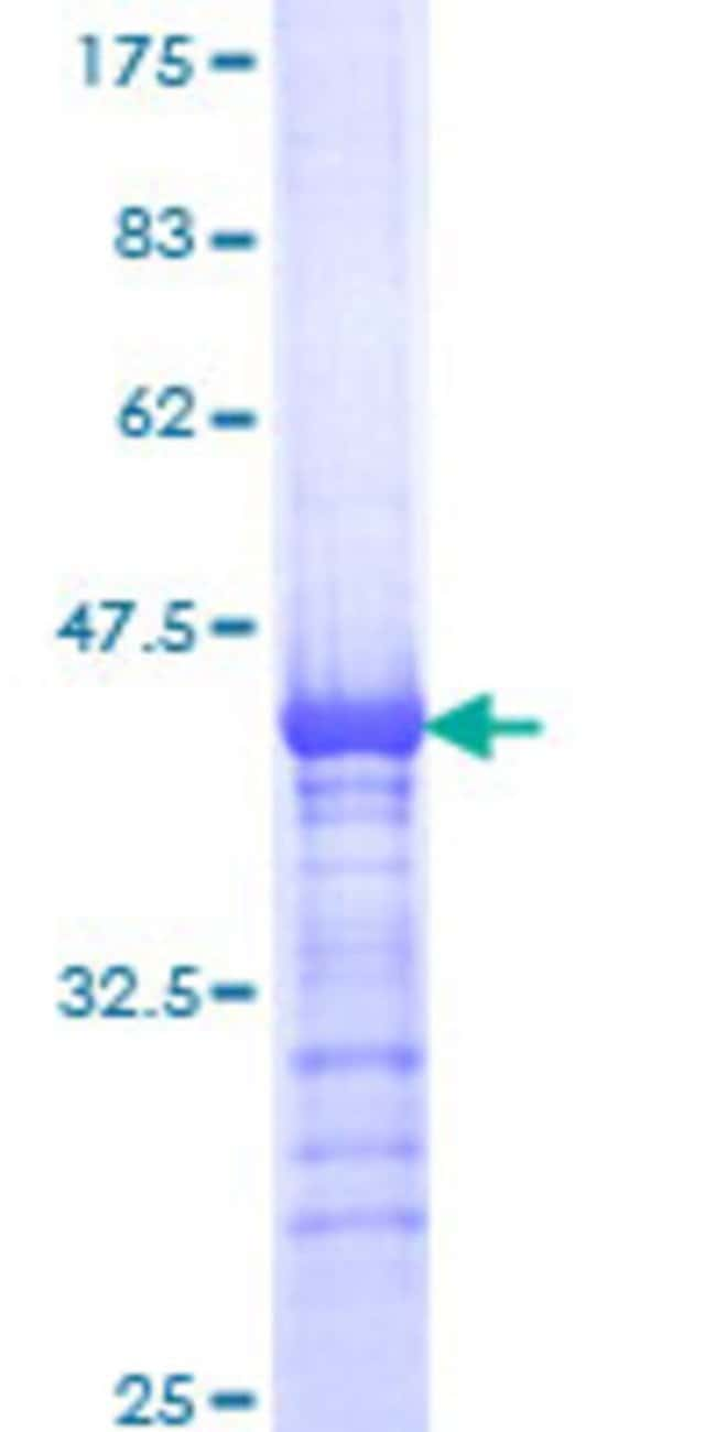 Abnova™Human KIF15 Partial ORF (NP_064627, 1279 a.a. - 1385 a.a.) Recombinant Protein with GST-tag at N-terminal 25μg Abnova™Human KIF15 Partial ORF (NP_064627, 1279 a.a. - 1385 a.a.) Recombinant Protein with GST-tag at N-terminal