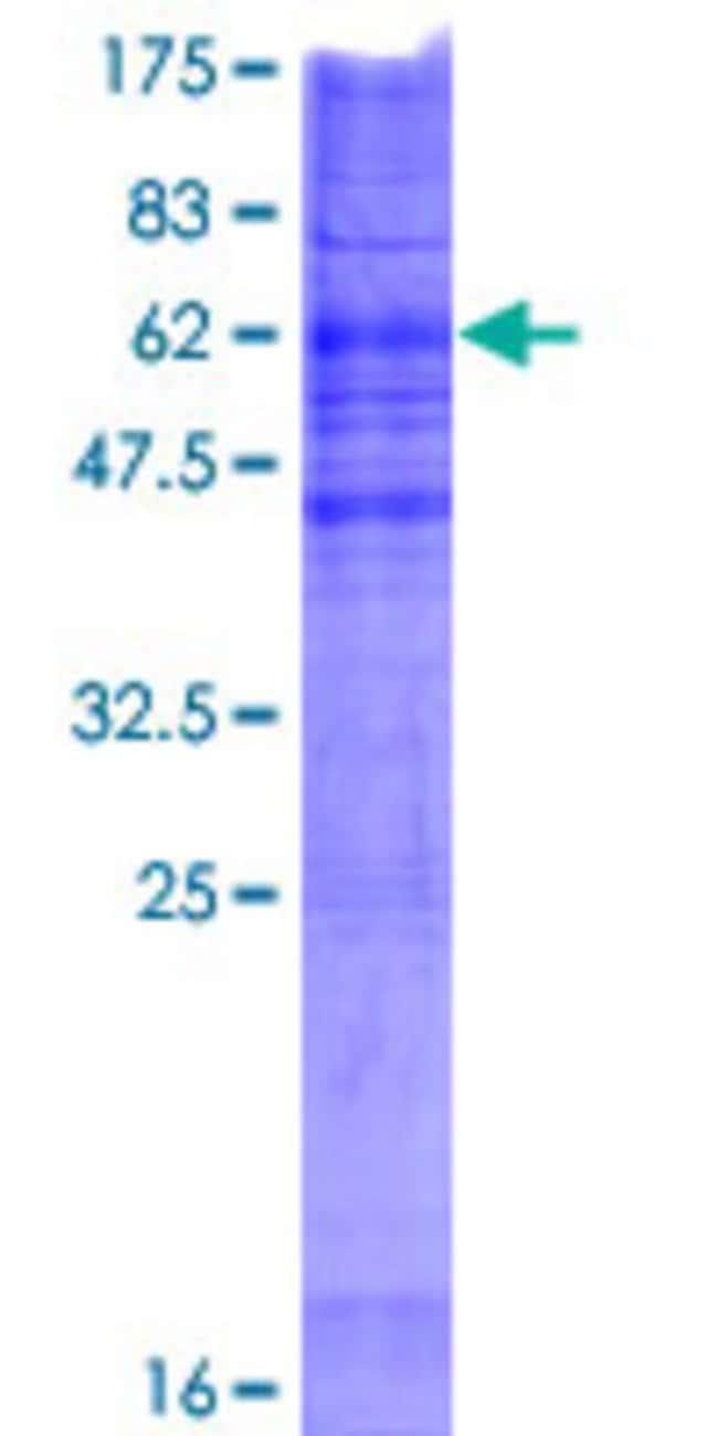 AbnovaHuman CHPT1 Full-length ORF (NP_064629.2, 1 a.a. - 406 a.a.) Recombinant