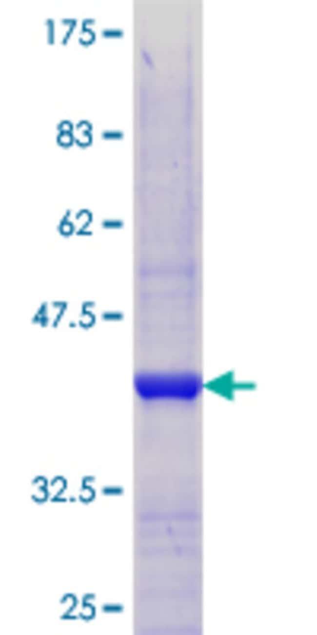 AbnovaHuman TULP4 Partial ORF (NP_001007467.1, 1 a.a. - 99 a.a.) Recombinant