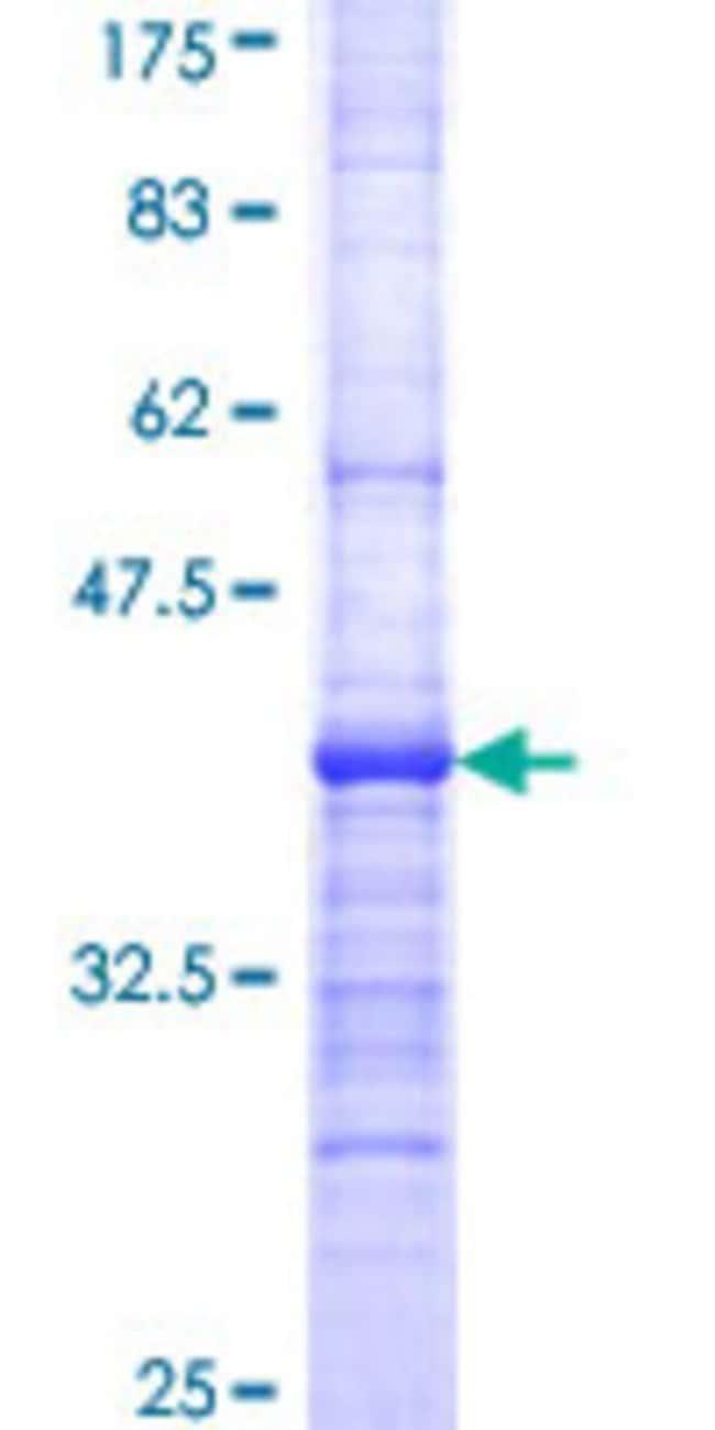AbnovaHuman CABC1 Partial ORF (AAH05171, 1 a.a. - 100 a.a.) Recombinant