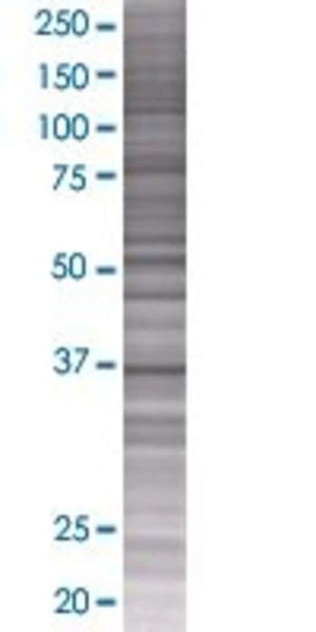 AbnovaAKR1B10 293T Cell Transient Overexpression Lysate (Denatured) 100μL:Protein