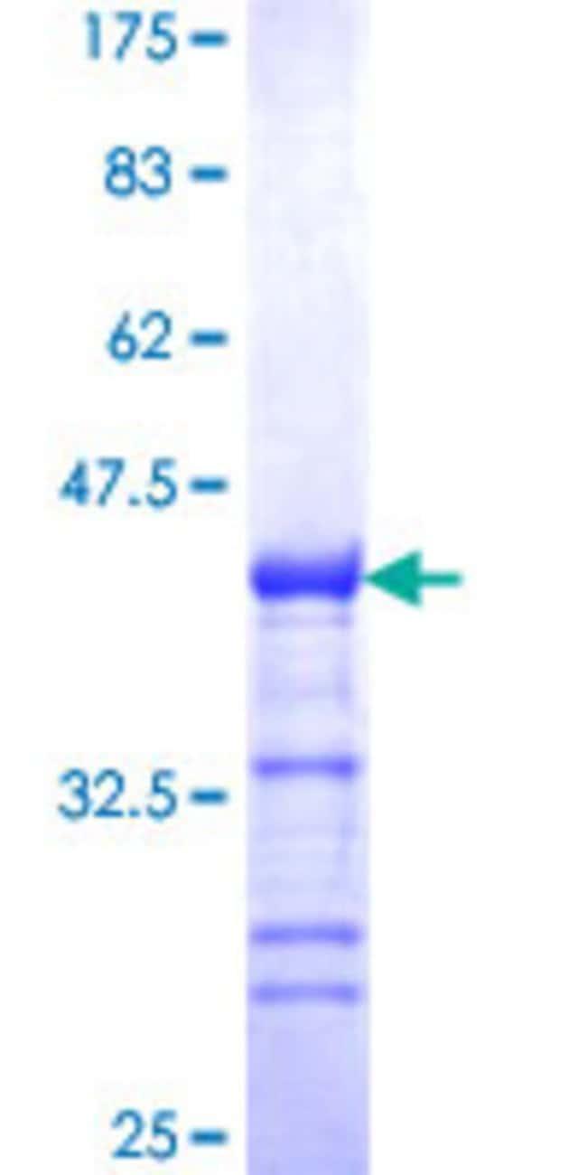 AbnovaHuman CIAPIN1 Partial ORF (NP_064709, 266 a.a. - 367 a.a.) Recombinant